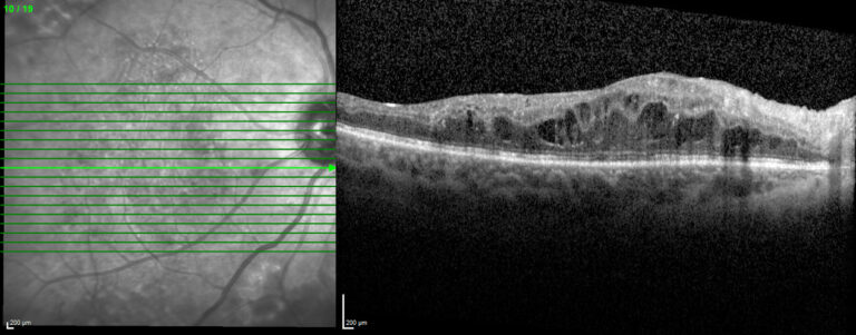 Original image of an OCT scan showing a retina