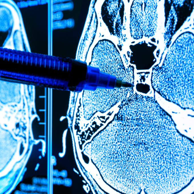 Pen pointing at a medical scan of a brain